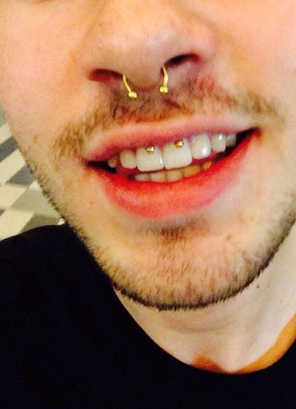 34smiley-piercing-110416