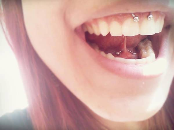 36smiley-piercing-081115