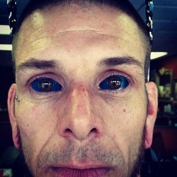 20250716-eyeball-tattoos