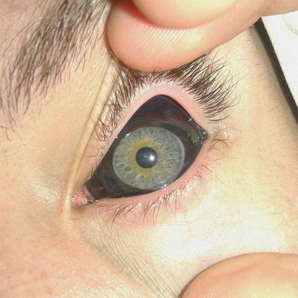 22250716-eyeball-tattoos